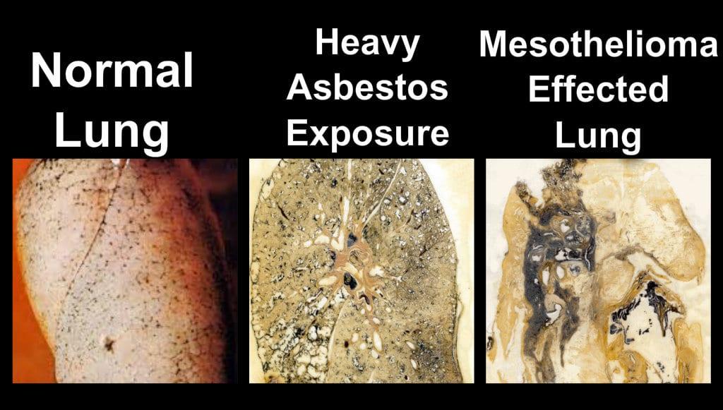 asbestos removal services in london ontario